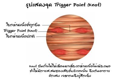 จุด Trigger Point (Knot) ในใยกล้ามเนื้อ